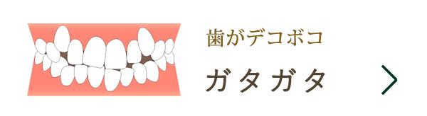 歯がデコボコ・ガタガタ