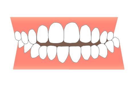 が ずれ てる 顎